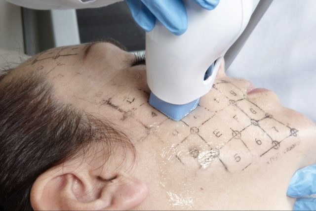 Face-Treatment1-1024x680-1